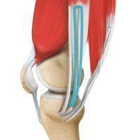 ACL Reconstruction Hamstring Tendon